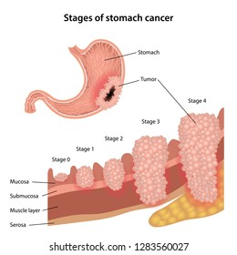 Stages of stomach cancer. Growth of cancer tumor growth. Anatomical vector illustration of the stomach with tumor and stages of stomach cancer isolated over white background.