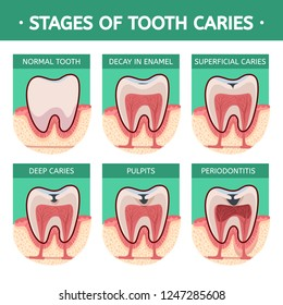 Stages of tooth caries. Periodontitis and inflammation of the gums. Healthy tooth then Gingivitis at the end advanced Periodontitis.