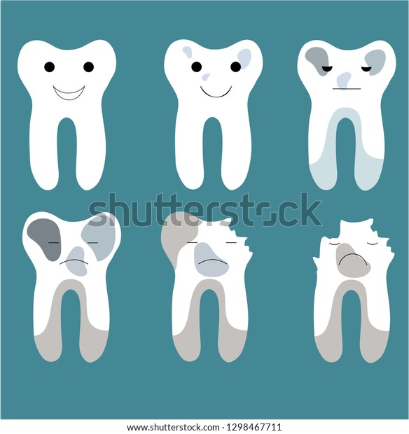 Stages Tooth Decay Stock Vector (Royalty Free) 1298467711
