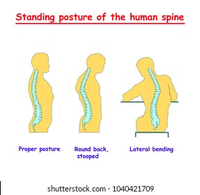 Standing posture of the human spine. Defects of the human spine. Correct alignment of human body in standing posture. vector illustration