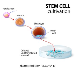 Stem cell cultivation. In Vitro Fertilization of the egg by a sperm outside the body.After several days they develop intoundifferentiated stem cells.