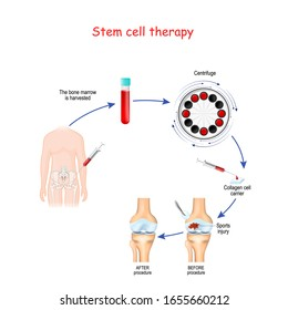 Stem cell therapy. Before and after of Sports injury. human knee joint