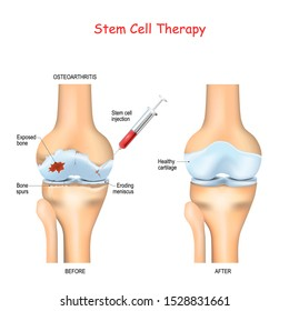 Stem cell therapy for pain in osteoarthritis knees and hips use the healing properties of your own cells, taken from your bone marrow or adipose fat to rebuild your damaged joints. Stem cell injection