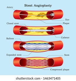 stent with balloon angioplasty & medical graphic