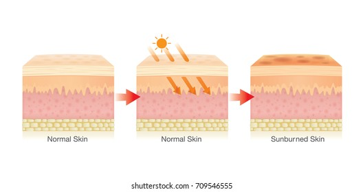 Step of Changing of human skin layer damaged from sunlight. Illustration about Health care.