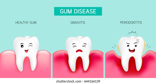 Step of gum disease. Healthy tooth and gingivitis.. Cute cartoon design, illustration isolated on green background. Dental care concept.