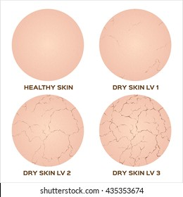 step of healthy to dry skin without moisturizer texture , vector icon