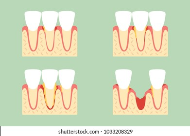 step of periodontal disease or gingivitis of incisor tooth - dental cartoon vector flat style cute character for design
