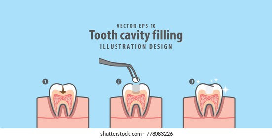 Step of tooth cavity filling cross-section structure inside toot