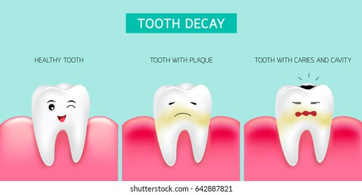 Step of tooth decay formation. Healthy tooth, forming dental plaque and finally caries and cavity. Cute cartoon design, illustration isolated on green background. Dental care concept.
