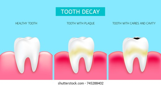 Step of tooth decay formation. Healthy tooth, forming dental plaque and finally caries and cavity. Illustration info-graphic isolated on blue background. Dental care concept.
