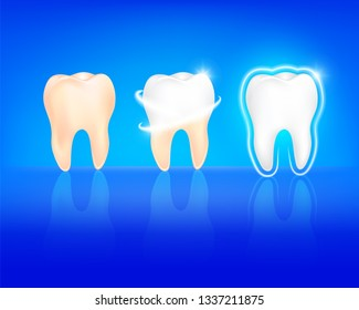 step of whitening tooth. Teeth Whitening. Dental care Concept. Illustration isolated on blue background.