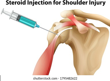 Steroid injection site deformation organon vive