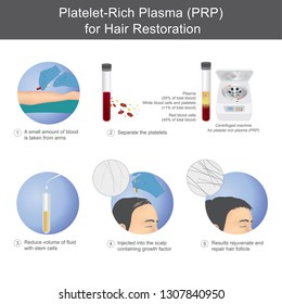 Stimulation of hair growth by using blood from service recipients through the process of separating platelet rich plasma, To be injected onto the scalp.