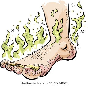 A stinky cartoon foot infected with toenail fungus and Athlete's Foot.