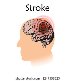 Stoke poster, banner. Vector medical illustration. White background, pink silhouette of man head, anatomy flat image of damaged human brain.