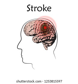 Stoke poster, banner. Vector medical illustration. White background, line silhouette of man head, anatomy flat image of damaged human brain.