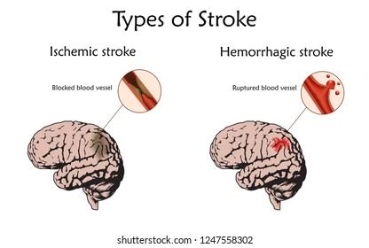 Stoke types poster, banner. Hemorrhagic, ischemic. Vector medical illustration. white background, anatomy flat image of damaged human brain, blocked and ruptured blood vessels.