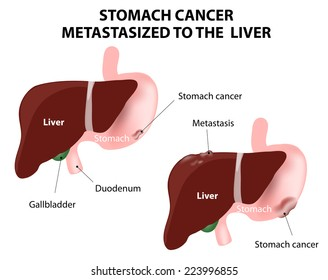 Stomach cancer Metastasized to the  liver. The spread of a cancer from one organ to another. Mets.