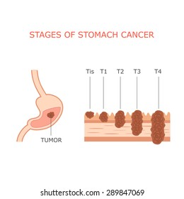 stomach cancer stages, human gastric tumor anatomy, digestive system,