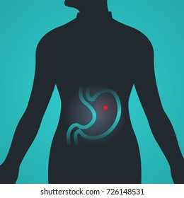 Stomach Cancer vector logo icon illustration