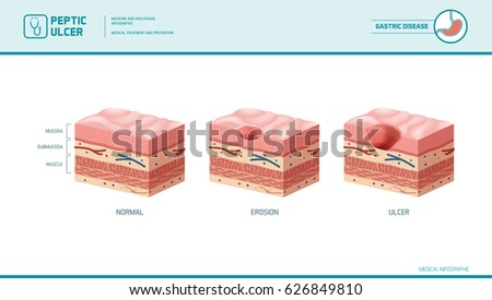 stomach erosion peptic ulcer stages 450w 626849810 stomach erosion peptic ulcer stages infographic stock vector