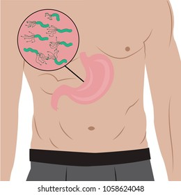 A Stomach full of Helicobacter pylori in the people's body. gastritis cause. Vector illustration in cartoon style
