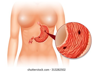 stomach ulcer diagram woman illustration 260nw 313282502 stomach ulcer images, stock photos & vectors shutterstock