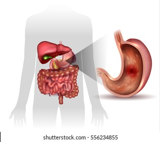 stomach ulcer interanal organs anatomy 260nw 556234855 stomach ulcer images, stock photos & vectors shutterstock