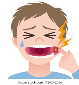 stomatitis, mouth ulcer, inflammation of the oral mucosa, image illustration