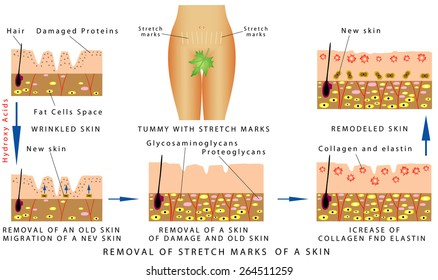 Skin Stretch Marks Images, Stock Photos & Vectors | Shutterstock