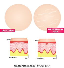stretch marks skin vector illustration