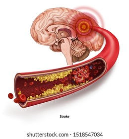 Stroke. A blood clot in the vessels of the human brain. Human anatomy Disease. Acute impairment of cerebral circulation. Medical 3d vector illustration isolated on white background.