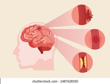 Stroke disease, ischemic, atherosclerosis and hemorrhagic. Scientific medical illustration of human brain stroke illustration. illustration, vector.