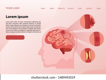 Stroke disease, ischemic, atherosclerosis and hemorrhagic. Scientific medical illustration of human brain stroke illustration. illustration, vector.