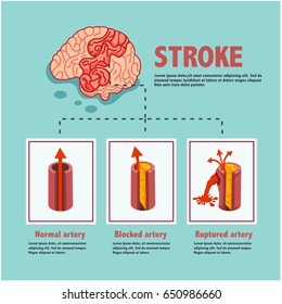 stroke disease, ischemic and hemorrhagic, blocked and ruptured artery, illustration, vector