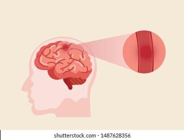 Stroke disease, ischemic. Scientific medical illustration of human brain stroke illustration. illustration, vector.