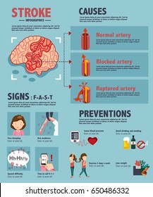 stroke - ischemic and hemorrhagic disease, medical infographics, illustration, vector