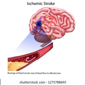 Stroke types poster, banner. Vector medical illustration. white background, anatomy image of damaged human brain, blocked and ruptured blood vessels.