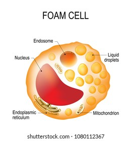 Structure of the foam cell. Foam cell (Cholesterol-loaded) is a swollen macrophage filled with lipid inclusions. This cell serve as the hallmark of early stage atherosclerotic lesion formation.