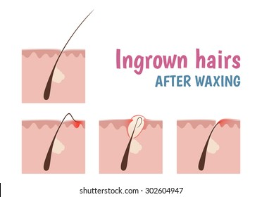 Ingrown Hair Images, Stock Photos & Vectors | Shutterstock