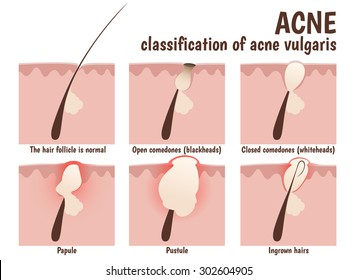 structure of the hair follicle, problem skin with pustules, acne, open comedones blackheads and closed comedones whiteheads
