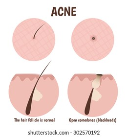 structure of the hair follicle, problematic skin with blackheads