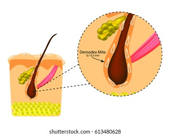 The structure of the hair. Sebaceous gland. Introduction of demodex mite. Demodecosis. Infographics. Vector illustration on isolated background.