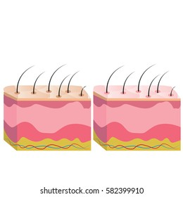 The structure of the skin, skin tone is different.