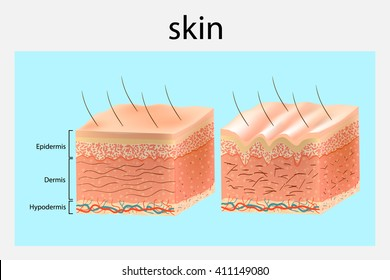 The structure of the skin. Younger skin and aging skin. Vector diagram