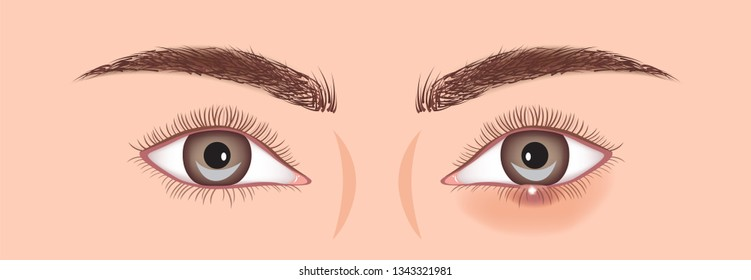 stye vector illustration