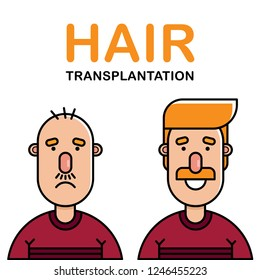 Successful hair transplantation effect showing bald upset man with almost no hair and happy smiling man with gorgeous new hair. Flat outline vector illustration.