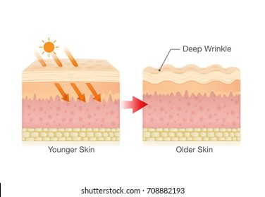 Sunlight makes sagging skin and makes it appear more wrinkled.