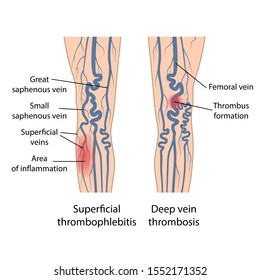 Superficial thrombophlebitis of legs. Deep vein thrombosis. Image of diseased legs. Vector illustration in flat style isolated on white background
